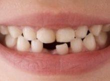 2271058_dentino